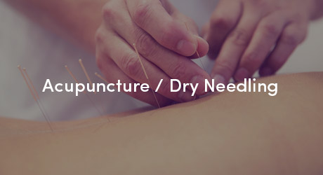 Backs & Beyond Acupuncture